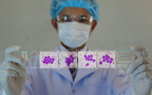 Doctor or Scientist looking a Leukemia cells