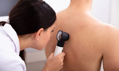 Doctor Examining Pigmented Skin On Man's Back